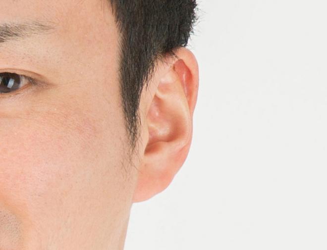 真珠腫性中耳炎