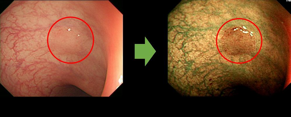 NBIによる高精度な内視鏡検査